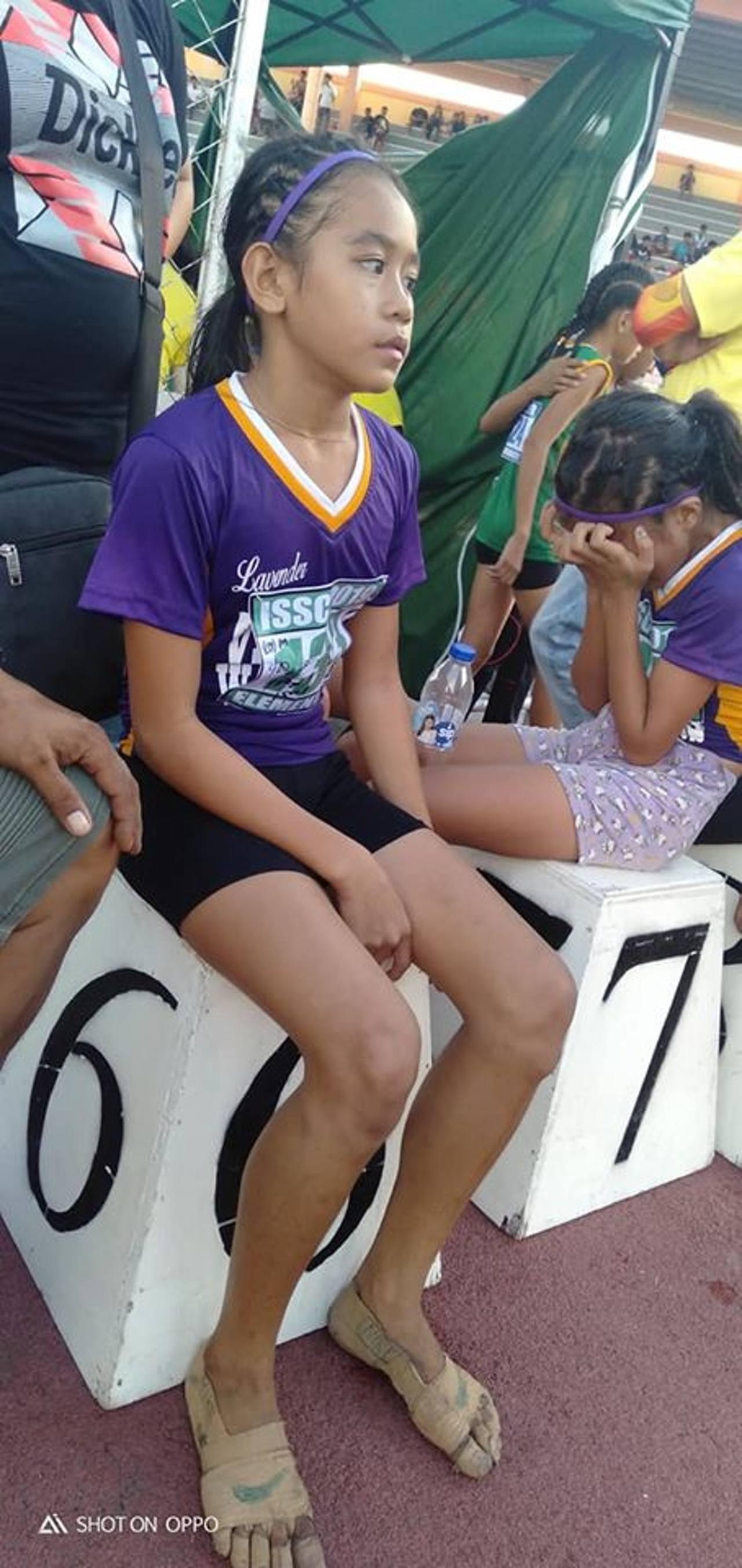 蕾雅日前參加學校舉辦的田徑賽,沒有跑鞋的她,用繃帶纏繞在腳上當跑鞋。(Predi...