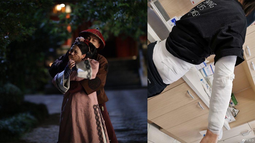 「延禧攻略」中飾演魏瓔寧的女星鄧莎自曝最近拔火罐遭燒傷。圖/擷自微博