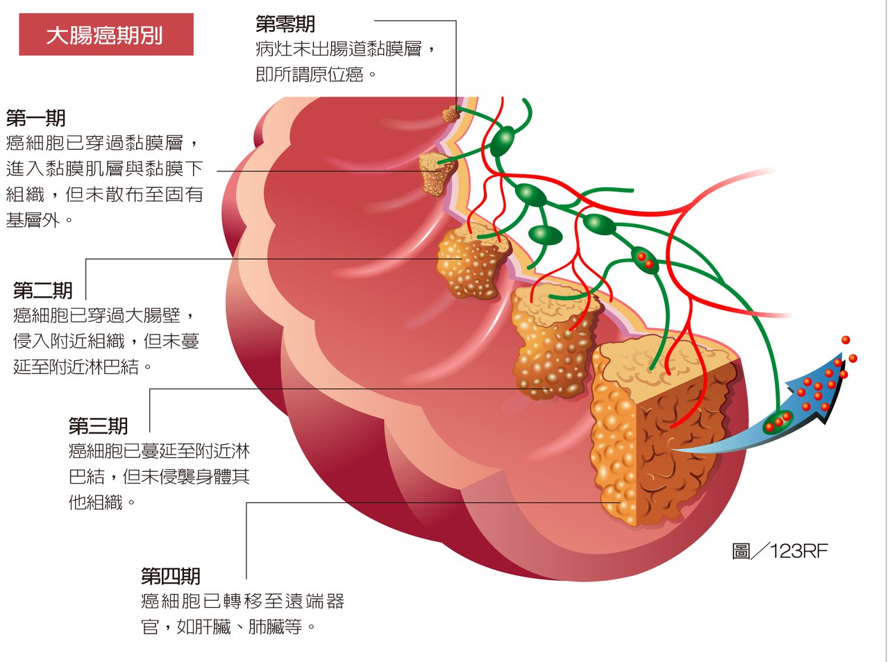 大腸癌的治療方式,建議依照期別做一根據。圖/擷取自元氣周報
