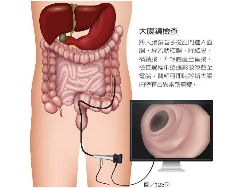 大腸鏡檢查將大腸鏡管子從肛門進入直腸,經乙狀結腸、降結腸、橫結腸、升結腸直至...