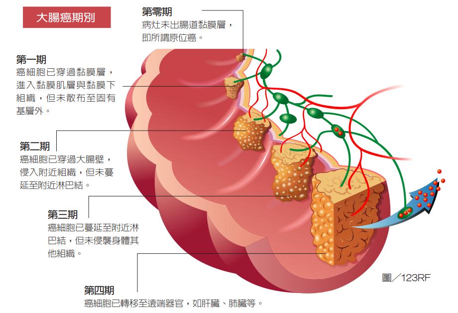 在大腸癌治療方面,除非發現時已是第四期,一般多以手術為首選。手術目的是切除腫瘤與...