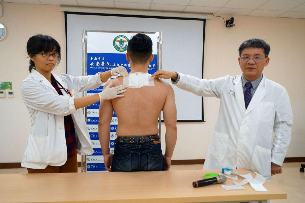 台南市安南醫院中醫部醫師部長黃升騰(右),示範三九貼。圖/安南醫院提供
