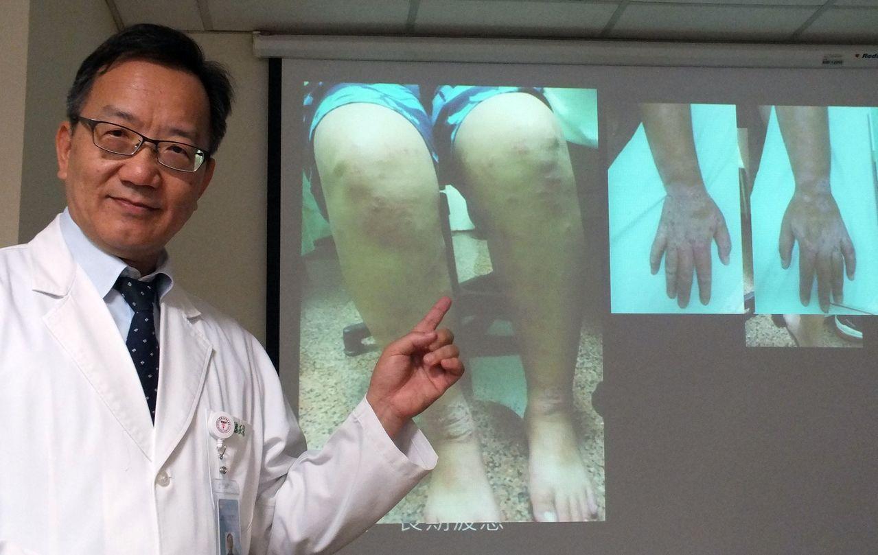 醫師魏正宗說明,26歲女異位性皮膚炎患者全身80%皮膚紅腫、脫皮,甚至滲液,目前...
