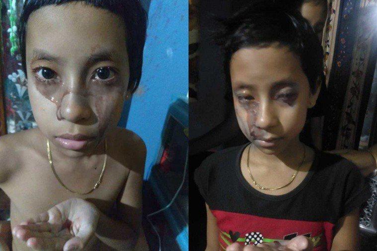 印度一名女孩疑似患有血汗症,全身不停流出紅色液體,一天還會發作5次。(為免讀者不...
