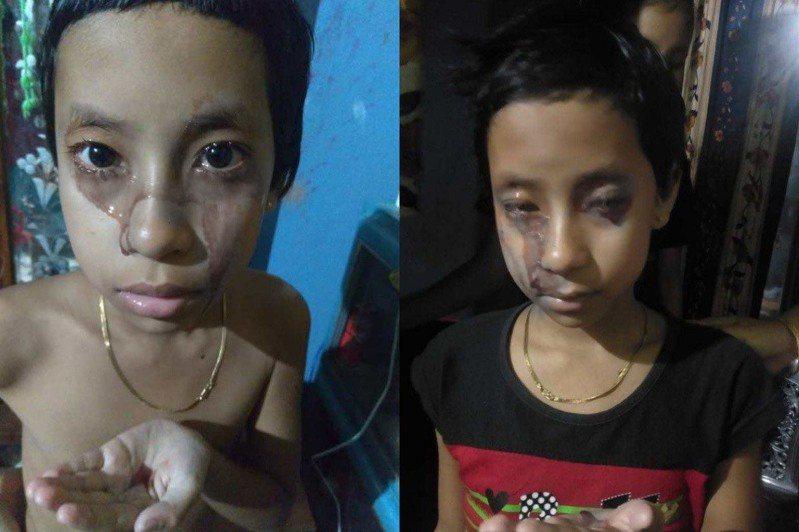 印度一名女孩疑似患有血汗症,全身不停流出紅色液體,一天還會發作5次。(為免讀者不適,血跡部分有做變色處理)圖擷自太陽報