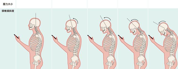 低頭如何損害我們的頸椎? 圖╱摘自《不開刀,治頸椎》