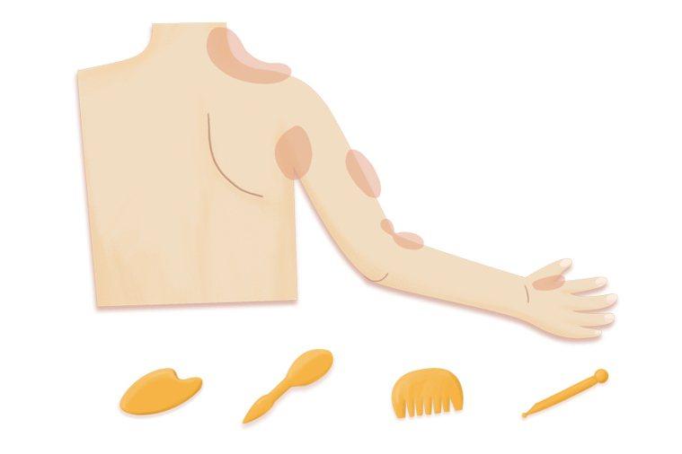 手臂與肩部常見痛區 因各人使用肌群不同,痛點區位置會因人而異。 放鬆小工具 牛角...