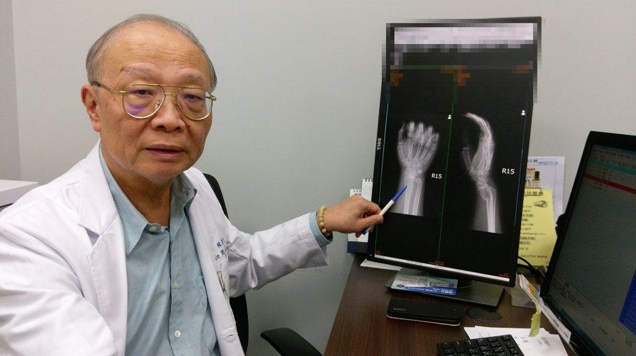 僅是騎腳踏跌倒,為何傷勢竟這麼嚴重?長安醫院骨科醫師林茂仁指出,這名男生雖是青少年,但體重卻有95公斤,顯然超重。圖/長安醫院提供