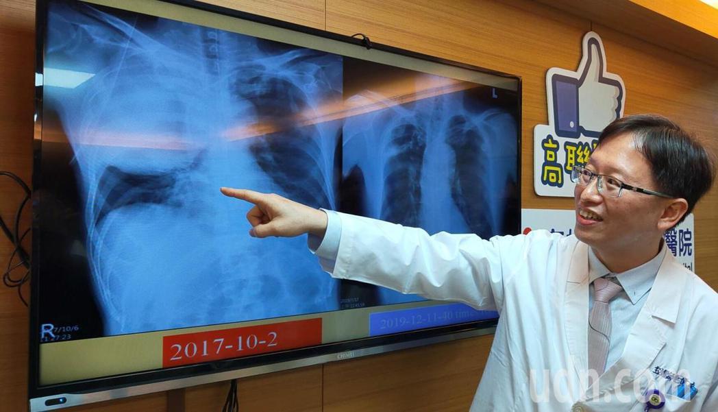 高雄市立聯合醫院胸腔內科主任連偉立表示,林先生2年前接受免疫治療前,腫瘤幾乎占據...