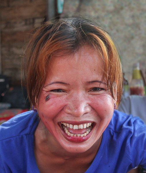 研究人員經過研究後,發現癡笑性癲癇為癲癇的一種,可能為下視丘錯構瘤所導致。(ph...