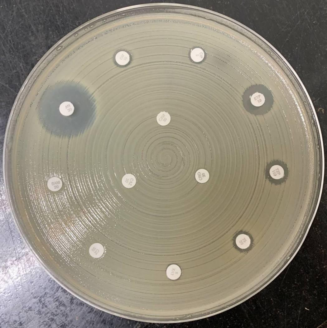 超級細菌培養皿上,菌盤上可見抗生素(白色圓點)的周圍幾乎沒有透明圈,顯示對超級細...