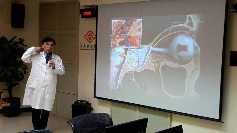 嘉義長庚副院長暨腦神經外科主治醫師楊仁宗表示,三叉神經有三個分支,分別掌管臉部上...