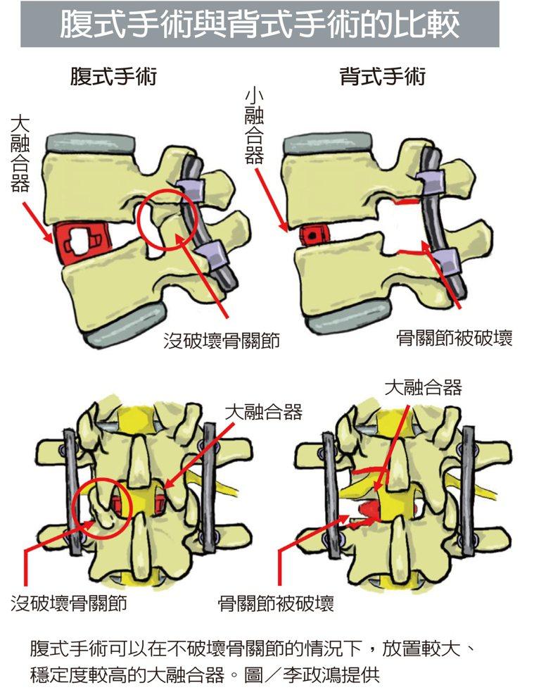 腹式手術可以在不破壞骨關節的情況下,放置較大、穩定度較高的大融合器。 圖/李政鴻...