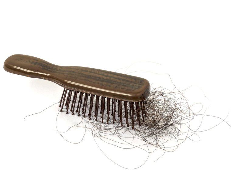 頭髮日漸稀疏怎麼辦? 圖/ingimage