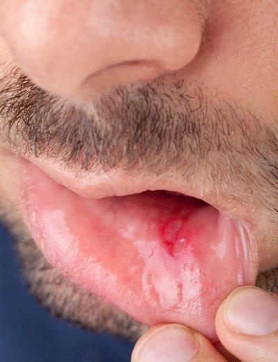 嘴破最常見的原因是缺乏維他命B? 圖片/ingimage