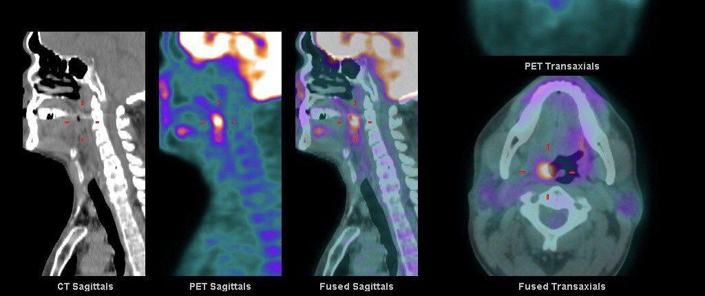 吳姓男子經正子攝影影像檢查,亮點就是扁桃腺癌。圖/南投醫院提供