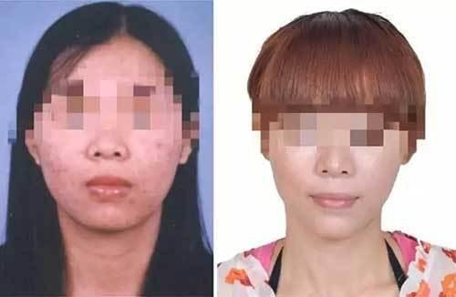 女子挪用公款潛逃16年 整形換臉還是被抓到