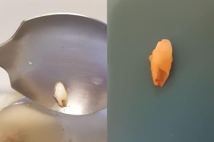 骨仔肉湯裡有一顆牙齒。 圖/翻攝自爆怨公社