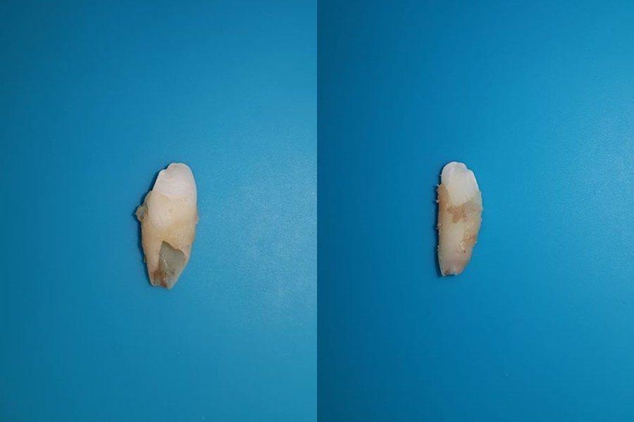有網友解答,這應該是豬的牙齒。 圖/翻攝自爆怨公社