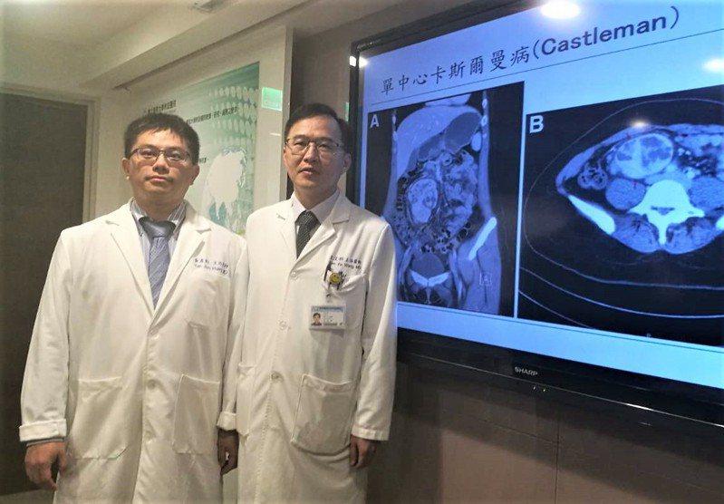 妙齡女持續便秘,就醫檢查發現是罕見的「城堡人疾病」,是台北醫學大學附設醫院近十年來碰上的第一例病例。記者羅真/攝影