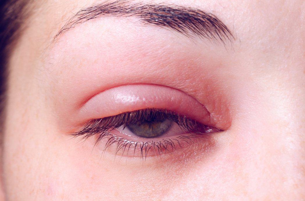 長針眼避免吃辛辣食物。 圖╱123RF