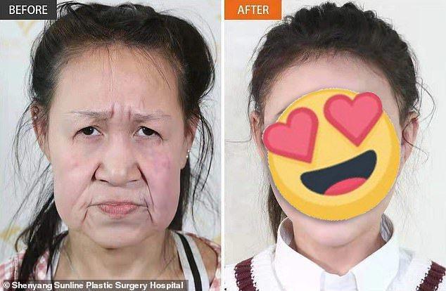 中國遼寧省15歲少女小鳳(化名)罹患罕見的皮膚早衰鬆弛症,年紀輕輕就頂著一張60歲「老臉」。在慈善團體和整形外科醫院協助下,小鳳終於找回少女應有的相貌、自信與尊嚴。畫面翻攝:每日郵報/瀋陽杏林整形外科醫院