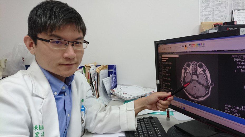 員林市宏仁醫院神經內科醫師王馨霈指出病人的腦下垂體腺瘤疑似壓迫視神經。記者林敬家/攝影