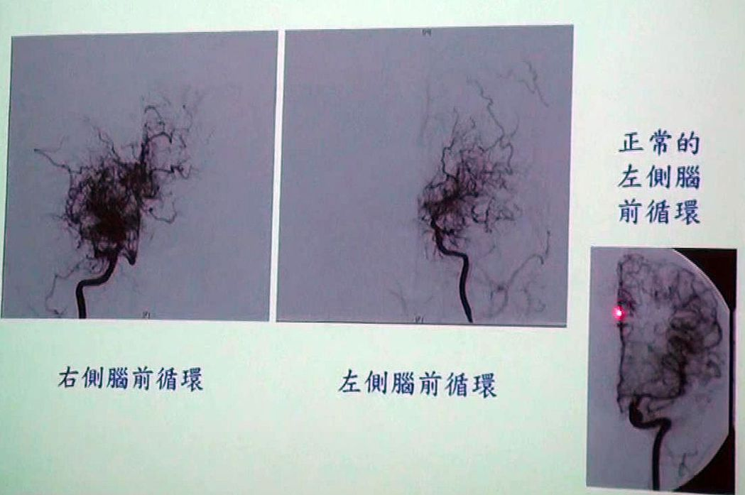 毛毛樣腦血管病變是種慢性進行性腦血管閉塞疾病,因為顱內大血管閉塞,導致小血管代償...