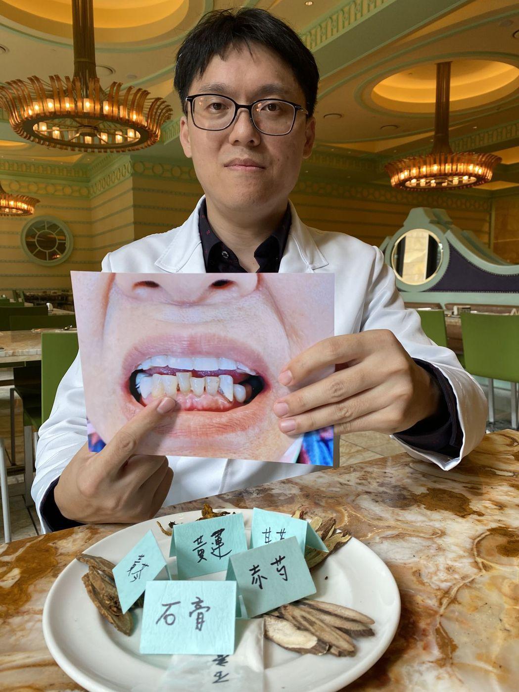 中醫師林育誠建議,牙周病除了可以透過中藥治療,戒辣、烤等食物,清潔牙齒也很重要,...