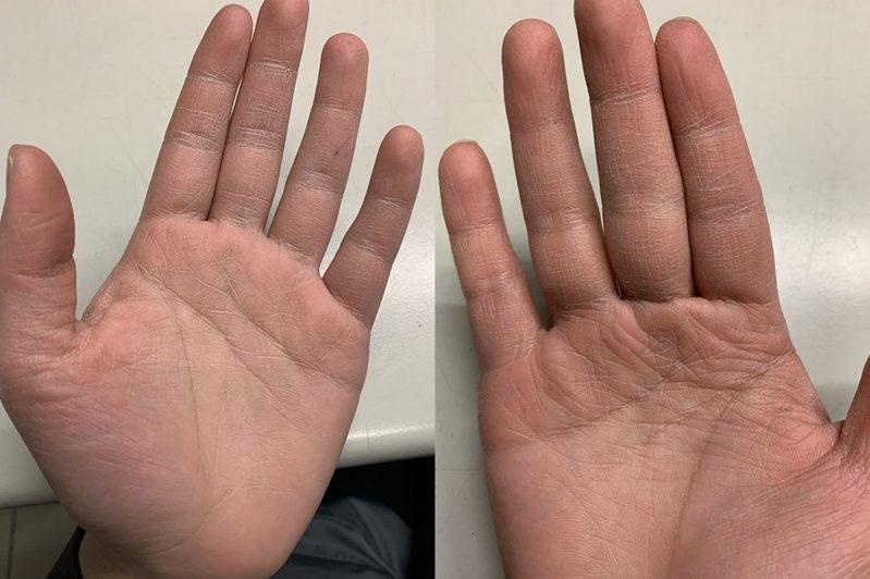 一名任職超商的網友貼出自己「手掌照」,因頻繁噴酒精變得粗糙乾裂。 圖片來源/FB社團「靠北7-11」