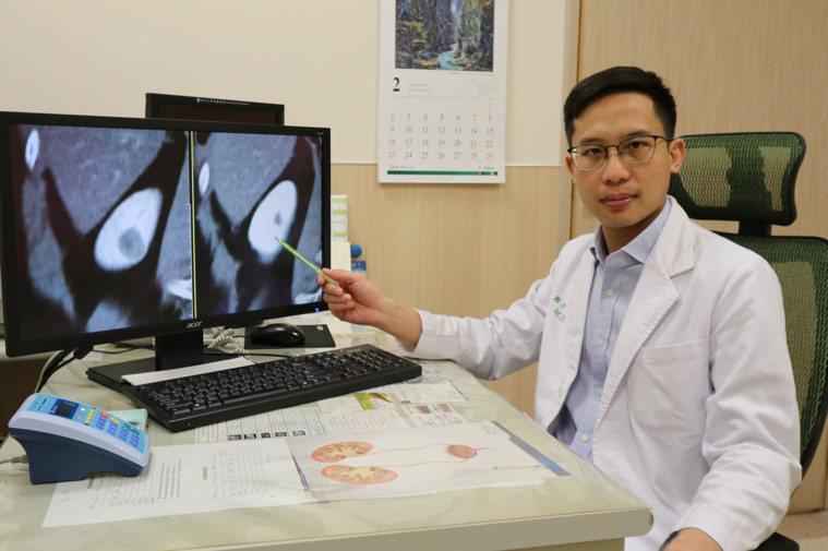 亞洲大學附屬醫院泌尿科醫師蕭子玄指出,腎細胞癌發生的原因尚未確定,主要以手術切除...