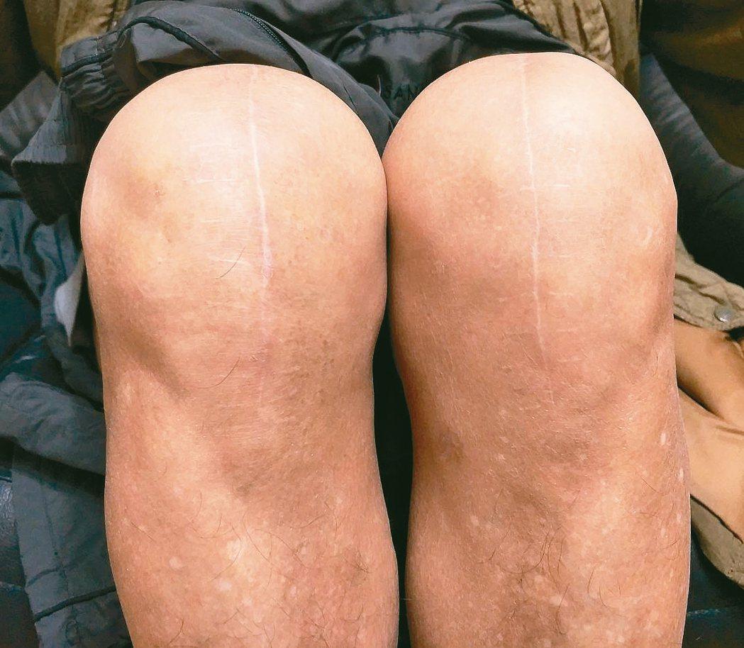 每個人老化速度不一,有人70歲健步如飛,有人卻舉步維艱。 圖╱陳存仁(中市北屯)