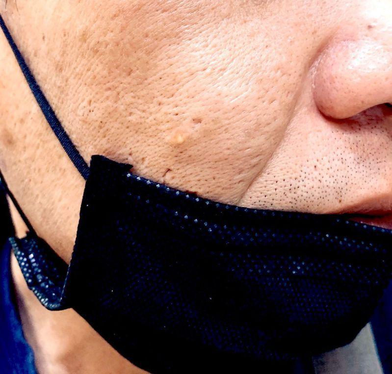 這陣手因應疫情發燒,大家口罩不離,有些民眾已悶出囊腫型痘痘,圖/義大醫院皮膚科提供
