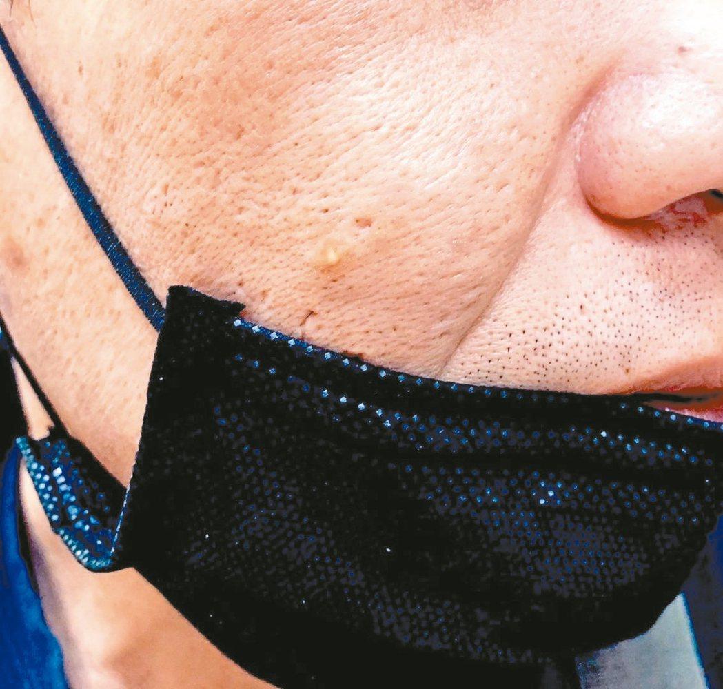 疫情緊繃,民眾長時間戴口罩,有人悶出囊腫型痘痘。 圖/義大醫院皮膚科提供