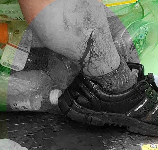 清潔人員小腿被割傷。圖/取自爆料公社