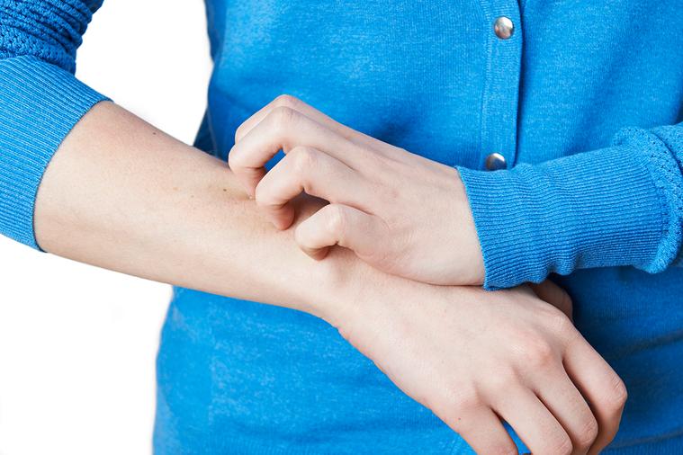 近來乍暖還寒,不少人在乾冷時候容易發生皮膚乾癢情形。 圖/ingimage