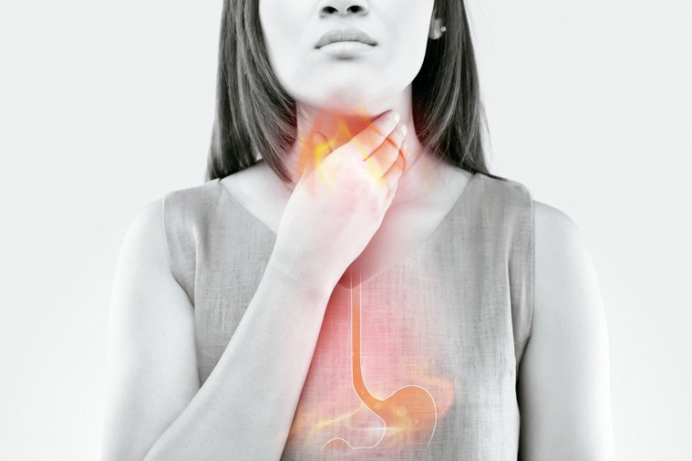 雖然大多數的胃食道流患者都在門診求醫,但「火燒心」讓人不適難耐,部分患者期待透過...