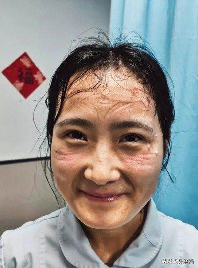 一線女醫護臉上滿是防護器具的勒痕。 圖/取自媒體人張曉磊微博