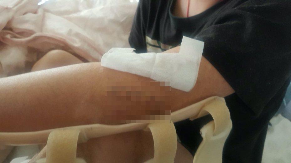 台中市尤姓男子9日凌晨開白牌計程車時,遭人攔路強盜,還被兩名歹徒砍傷手腳,尤身上多處中刀。圖/家屬提供