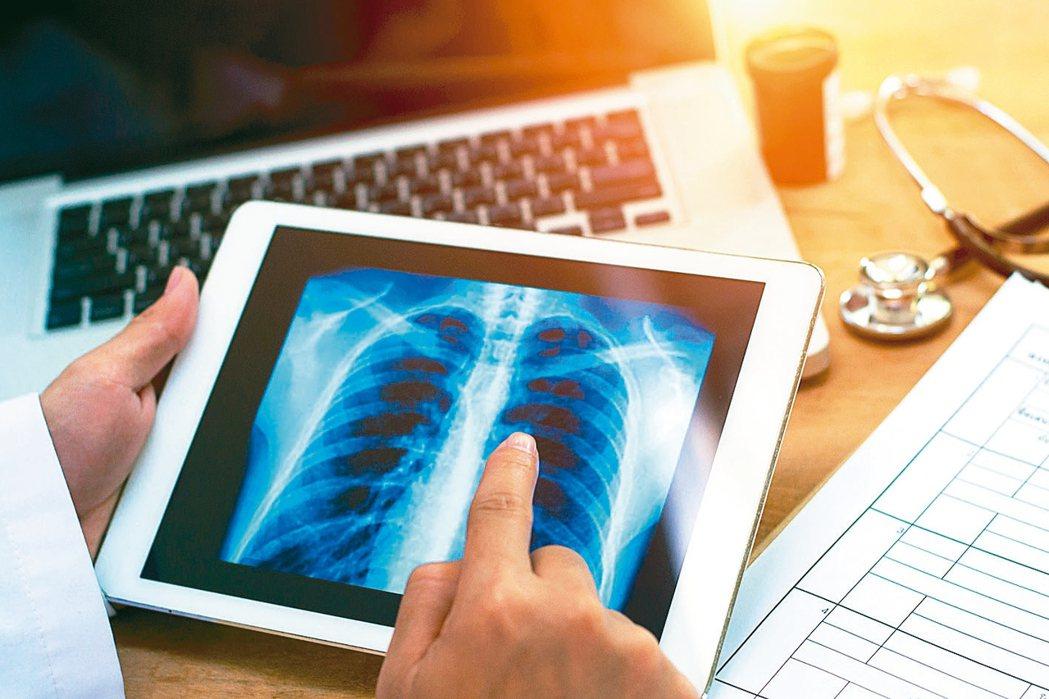 肺癌是全球癌症十大死因之首,科學界致力找出加速患者死亡的關鍵因子。 圖/123R...