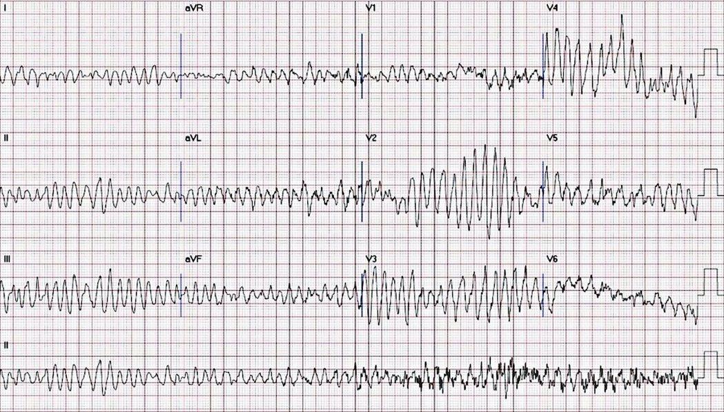 心電圖顯示,患者暈倒後心室顫動。 圖/林明志