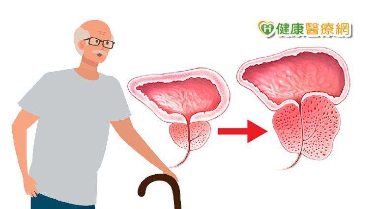 根據統計,80歲以上男性長者幾乎9成都會面臨攝護腺肥大的困擾。