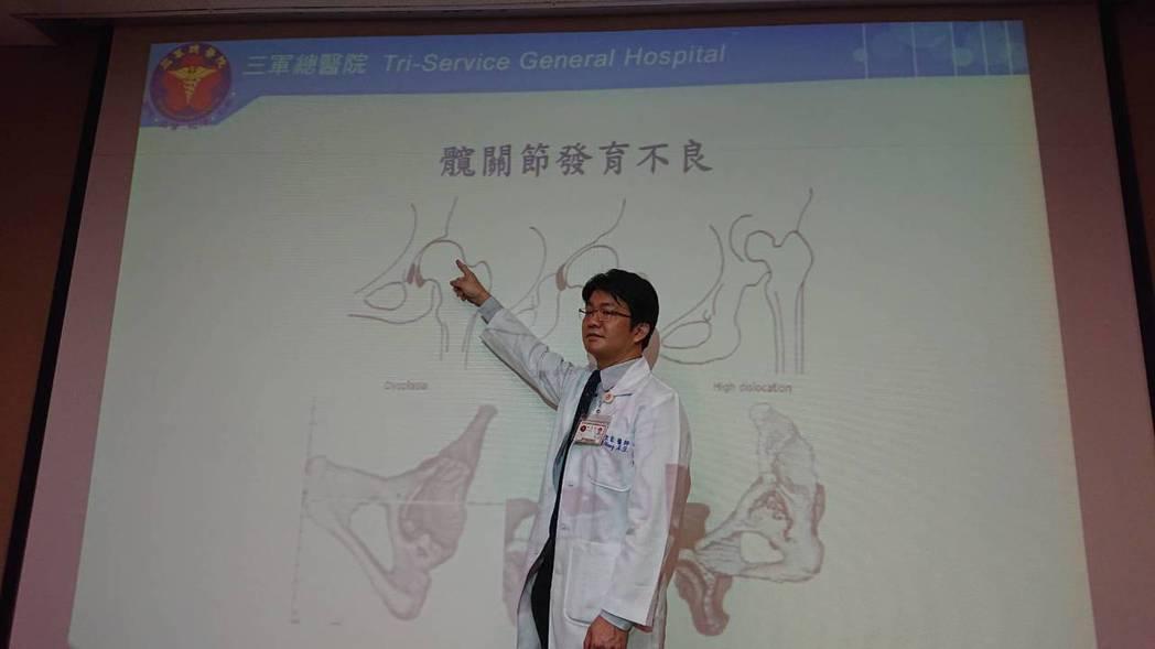 髖部關節炎最常見的臨床症狀是髖關節周邊的疼痛。圖/聯合報系資料照片