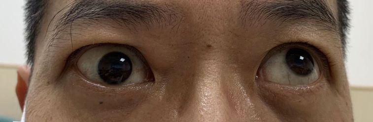 李姓患者就診發現,右眼(左)無法向上轉動,左眼(右)正常,可向上轉動。圖/亞大醫...