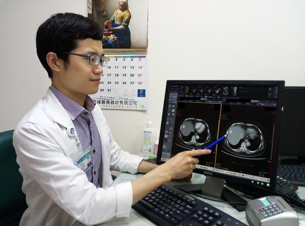 林裕鈞醫師說明病人接受血管栓塞術及電燒療法治療,恢復狀況好,且後續追蹤也無復。圖...