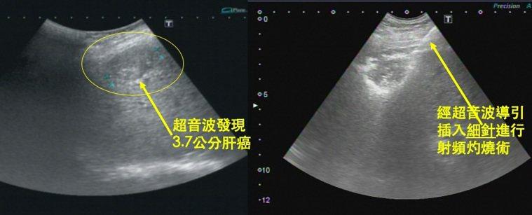 電燒療法是插入能產生高溫的特殊細針(如右圖所示),將肝癌細胞燒死。圖/大千綜合醫...