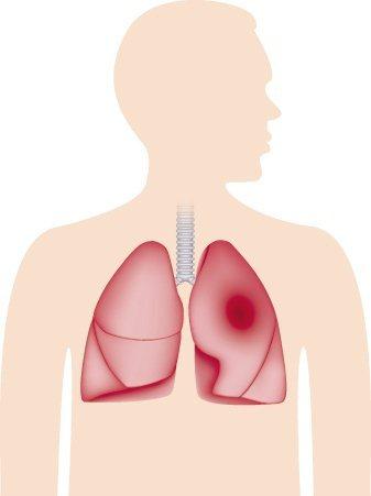 肺臟示意圖。 圖/ingimage