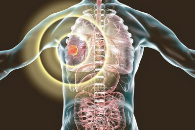 透過基因檢測,讓肺癌病友用對標靶藥物。 圖/123RF