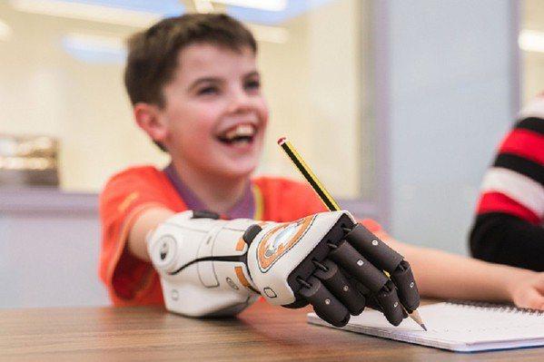 圖一 : 11歲的Cameron Millar天生沒有右手,4歲時他想要騎單車,並有了人生第一隻義肢,但什麼事都做不了。現在透過智慧的控制系統演算法,英國仿生手臂廠商Open Bionics為他打造了高自由度、輕巧且可負擔的Hero Arm,做起事來變得更順手。(source:openbionics.com)