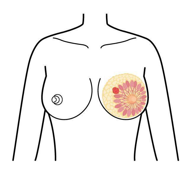 乳癌好發年齡在五十幾歲,比其他常見癌症年輕許多。圖/123RF